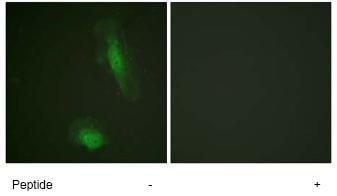 Immunocytochemistry/ Immunofluorescence - AKT1 antibody (ab74117)