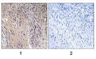 Immunohistochemistry (Formalin/PFA-fixed paraffin-embedded sections) - RhoGDI (phospho S174) antibody (ab74142)