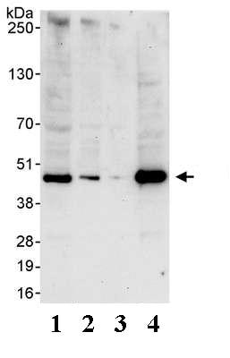 Western blot - TATA binding protein TBP antibody (ab74222)
