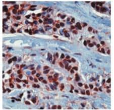 Immunohistochemistry (Formalin/PFA-fixed paraffin-embedded sections) - Hsp90 alpha antibody (ab74248)