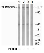 Western blot - TUBGCP5 antibody (ab74364)