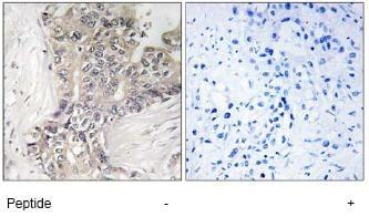 Immunodiffusion - B3GALTL antibody (ab74824)