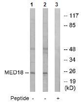 Western blot - MED18 antibody (ab74937)