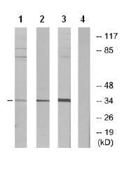 Western blot - GPCR GPR82 antibody (ab75582)