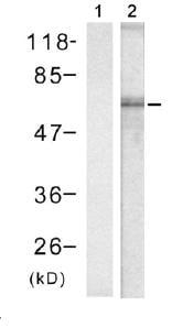 Western blot - Tau (phospho S356) antibody (ab75603)