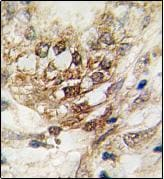 Immunohistochemistry (Formalin/PFA-fixed paraffin-embedded sections) - OSR1 antibody - N-terminal (ab76689)