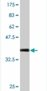 Western blot - STK31 antibody (ab76839)