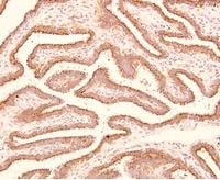 Immunohistochemistry (Formalin/PFA-fixed paraffin-embedded sections) - Trophinin antibody [3-11] (ab78117)