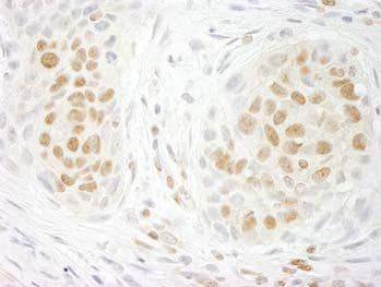 Immunohistochemistry (Formalin/PFA-fixed paraffin-embedded sections) - GIT2 antibody (ab100809)