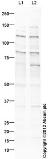 Western blot - Anti-NALP12 antibody (ab100863)