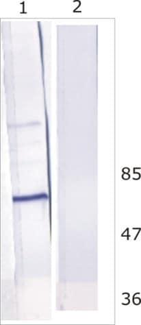 - Anti-HCV subtype 1b NS5B antibody [10D6] (ab100895)