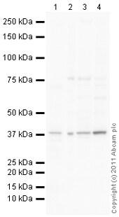 Western blot - Anti-KIR2DL4 antibody (ab100996)
