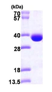 SDS-PAGE - Spermidine synthase protein (ab101051)