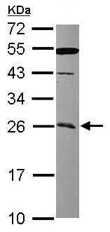 Western blot - CCDC90B antibody (ab101357)