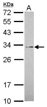 Western blot - GALNT12 antibody (ab101358)