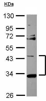 Western blot - START domain containing 7 antibody (ab101525)