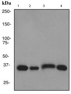 Western blot - Lactate Dehydrogenase Isoenzyme V antibody (ab101562)