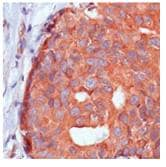 Immunohistochemistry (Formalin/PFA-fixed paraffin-embedded sections) - Calpastatin antibody [SP82] (ab101684)