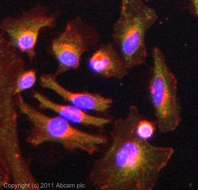 Immunocytochemistry/ Immunofluorescence - Anti-GPT2 antibody (ab101876)