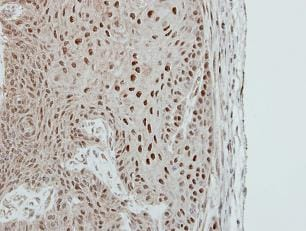 Immunohistochemistry (Formalin/PFA-fixed paraffin-embedded sections) - MA2 antibody (ab102089)