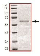 SDS-PAGE - Active human Casein Kinase 1 alpha full length protein (ab102102)