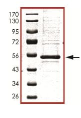 Western blot - PKA regulatory subunit I beta protein (ab102106)
