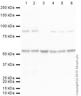 Western blot - Rabbit polyclonal Secondary Antibody to Rat IgG - H&L (AP) (ab102169)