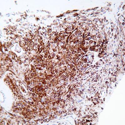 Immunohistochemistry (Formalin/PFA-fixed paraffin-embedded sections) - Steady DAB/Plus (200ml) (ab103723)