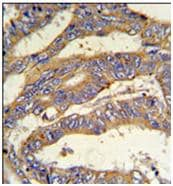 Immunohistochemistry (Formalin/PFA-fixed paraffin-embedded sections) - RSAD1 antibody (ab104051)