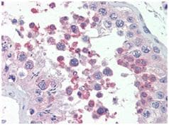 Immunohistochemistry (Formalin/PFA-fixed paraffin-embedded sections) - Anti-KMT2B / MLL4 antibody (ab104444)