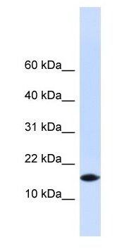 Western blot - PHLDA3 antibody (ab104766)