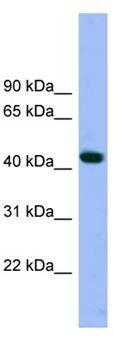Western blot - Arp3 antibody (ab104825)