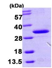 SDS-PAGE - HDHD3 protein (ab104901)