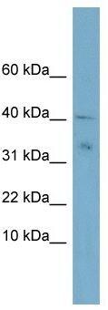 Western blot - NDUFV3 antibody (ab104983)