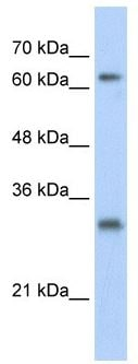 Western blot - USP39 antibody (ab104989)