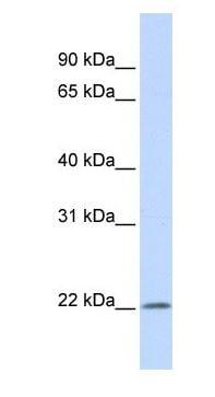 Western blot - IFNA5 antibody (ab105013)