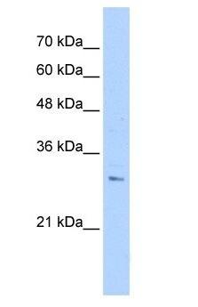 Western blot - RHBDL2 antibody - N-terminal (ab105014)