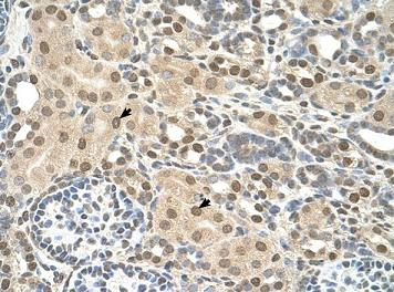 Immunohistochemistry (Formalin/PFA-fixed paraffin-embedded sections) - Transmembrane protein 30A antibody (ab105062)