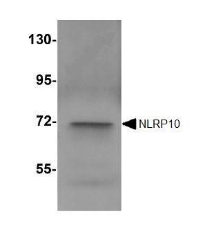 Western blot - NLRP10 antibody (ab105407)