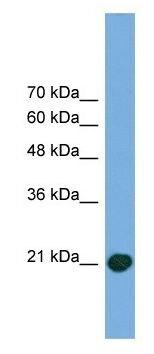 Western blot - COMMD8 antibody (ab105691)