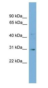 Western blot - GJE1 antibody (ab105713)