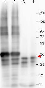 Western blot - Anti-GDF15 antibody [23G10.F8] (ab105732)