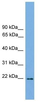 Western blot - JDP2 antibody (ab105736)