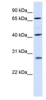 Western blot - RDM1 antibody (ab105746)