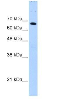 Western blot - Fbxw7 antibody (ab105752)