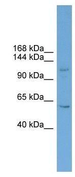 Western blot - ZNF628 antibody (ab105810)