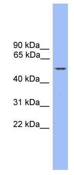 Western blot - ZBTB8B antibody (ab105820)
