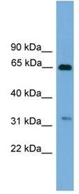 Western blot - UBXD3 antibody (ab105821)