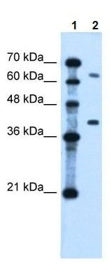 Western blot - LRRC26 antibody (ab105838)