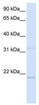 Western blot - C14orf180 antibody (ab105839)